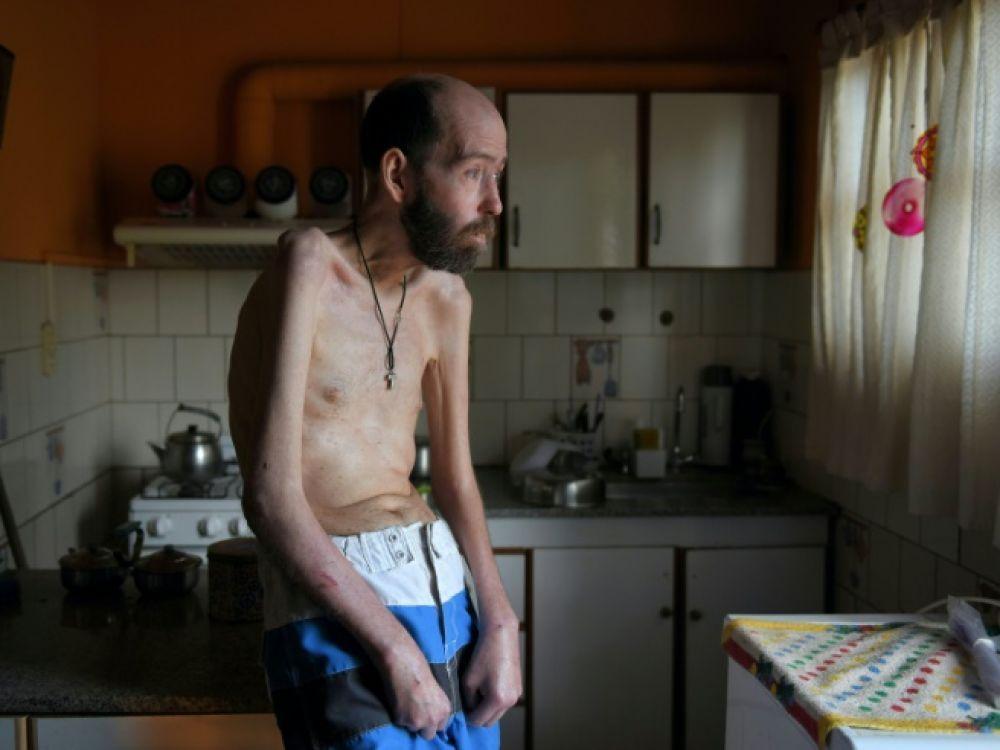 Argentine: mort à 53 ans de Fabian Tomasi, symbole de la lutte contre le glyphosate (AFP/ Sciences et avenir)